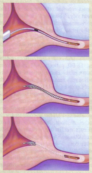 Micro-insert placement. The Essure® (Conceptus Inc., Mountain view, CA) procedure for permanent birth control