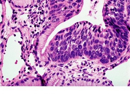 Figure 3. HSIL histology: extensive involvement by CIN3 of surface epithelium and glands of cervix.
