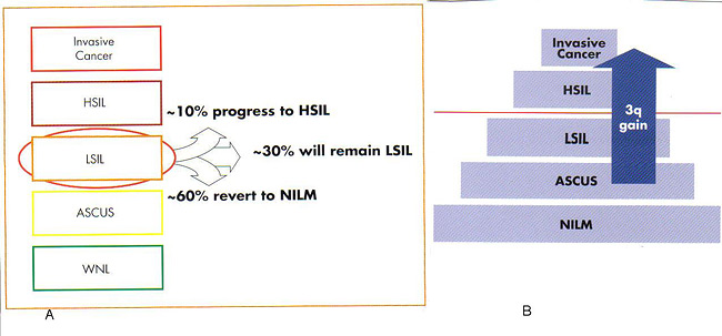 Figure 3: A. A schematic indicating LSIL regression or progression. B. 3q gain can aid in categorizing patients previously diagnosed with LSIL within the risk stratification. WNL, within normal limits; NILM, negative for intraepithelial lesion or malignancy. Photograph courtesy of Ikonisys Inc.