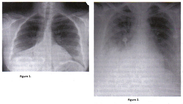 Figure 1. Chest radiograph of right pneumococcal pneumonia; Figure 2. Chest radiograph of pregnant woman with varicella pneumonia. Note the nodular and interstitial infiltrates similar to other viral pneumonias.