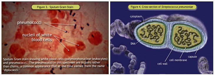 Figure 3. Sputum Gram Stain; Figure 4. Cross-section of <i>Streptococcus pneumoniae</i>