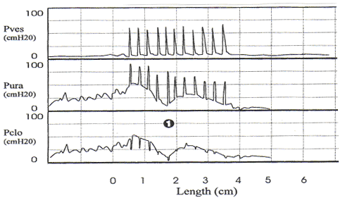 Stress urethral closure pressure measurement with primary urethral instability. Note the small magnitude fluctuations in urethral pressure before coughing and the decrease in the urethral pressure shortly after initiation of coughing (1). This should not be mistaken for sphincteric deficiency.