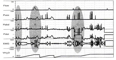 Unequal pressure transmission (and a potpourri of other artifacts). Before bladder filling is begun, when the patient coughs, vesical pressure rises much higher than abdominal pressure and detrusor pressure is artifactually elevated [shaded oval A). Thereafter, whenever there is a rise in Pves > Pabd, Pdet artifactually rises. In the area marked by the shaded oval B, she is incontinent during an involuntary detrusor contraction that is barely measurable. In the midst of the contraction, she was asked to stop. She contracts her sphineter (Increased EMG activity), interrupts the stream (Q falls to 0), and Pdet rises as the bladder is contracting against the closed sphincter. The bladder is refilled and she is asked to repeatedly cough. Each time, Pves > Pabd and Pdet is artifactually increased. During one of the coughs, the Pabd catheter is expelled and Pabd falls well below 0, artifactually raising Pdet (Shaded oval C).