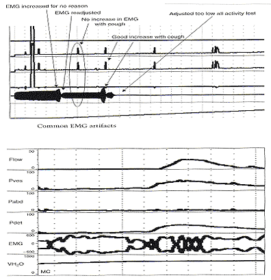Note that this patient has a sustained detrusor contraction and normal uroflow. Both the detrusor contraction and uroflow have smooth curves yet there are multiple increases in EMG activity that suggest contractions of the striated urethral sphincter. If these were sphincter contractions there should be synchronous changes in detrusor pressure and uroflow.
